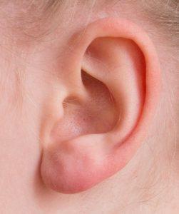 Każdy z nas zna jakieś sposoby na zatkane ucho. Ale czy są skuteczne ?