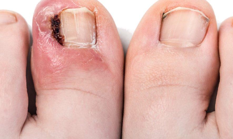 Klamry na wrastające paznokcie